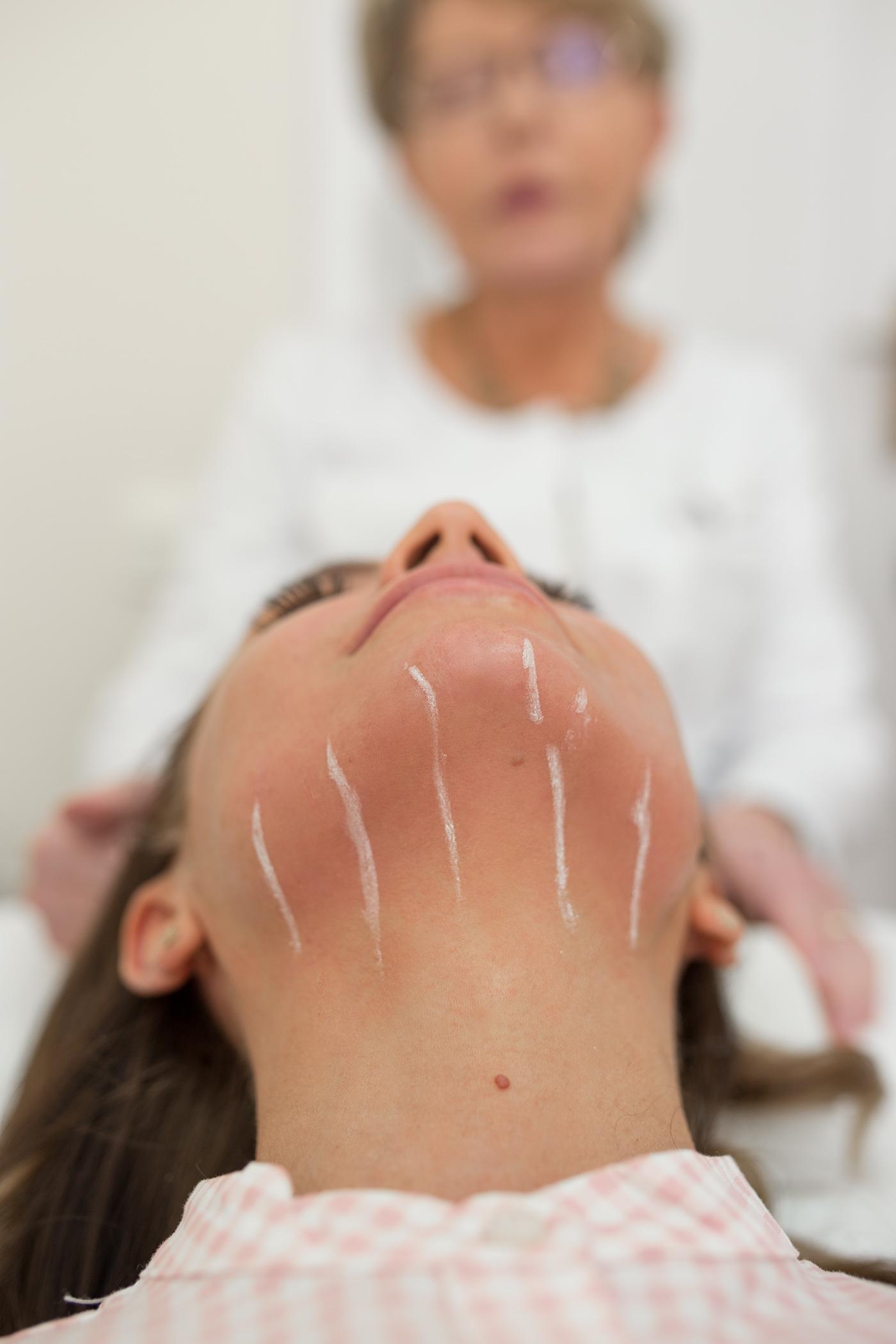 Zabieg Ulthera, nieinwazyjny lifting twarzy, Skin Laser Lubelscy